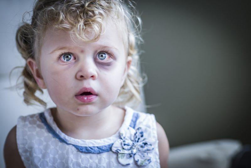 אלימות נגד ילדים