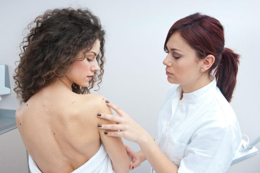 גילוי סרטן העור