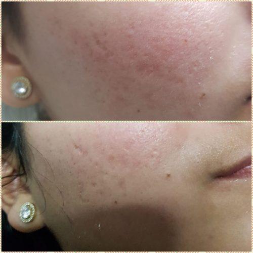 לפני ואחרי. רוזיטה קוסמטיקס
