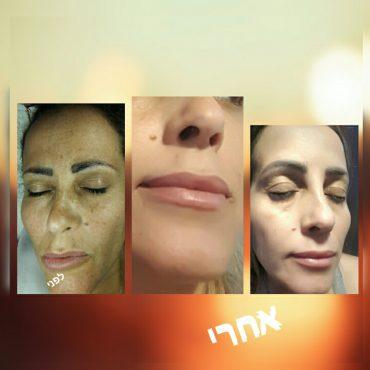 לפני ואחרי טיפול אצל סוזאנה קריספין