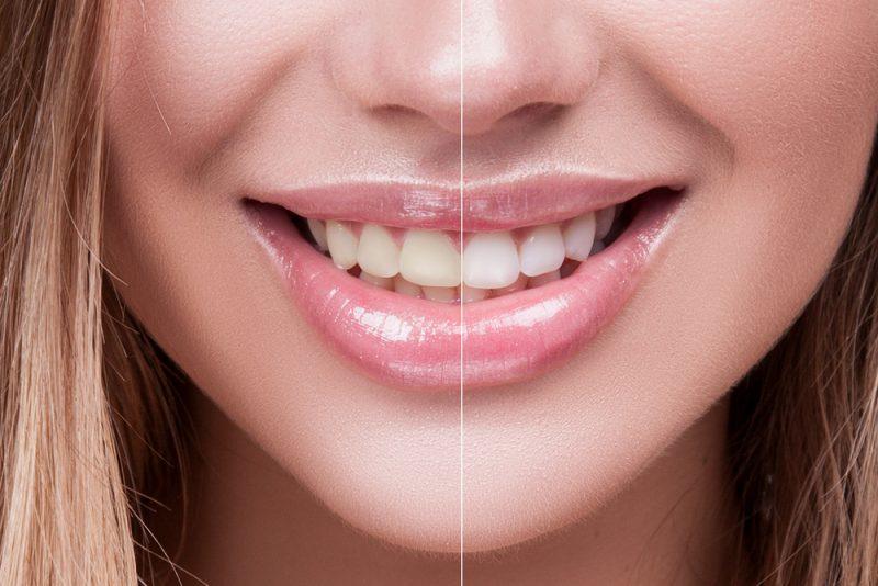 הלבנת שיניים בראשון לציון: גט סמייל משדרגים לכם את החיוך. צילום: L Julia, Shutterstock